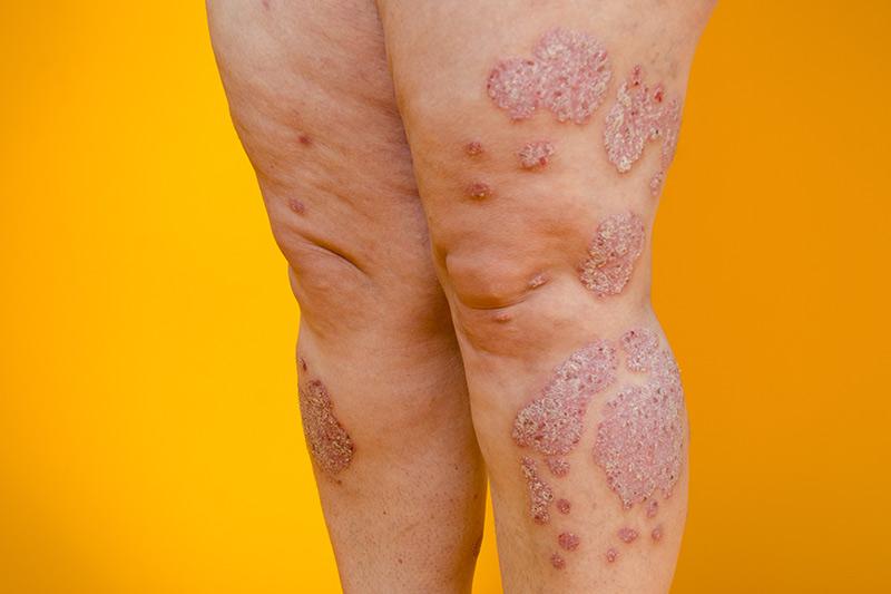Dermatologie Quist - Schuppenflechte