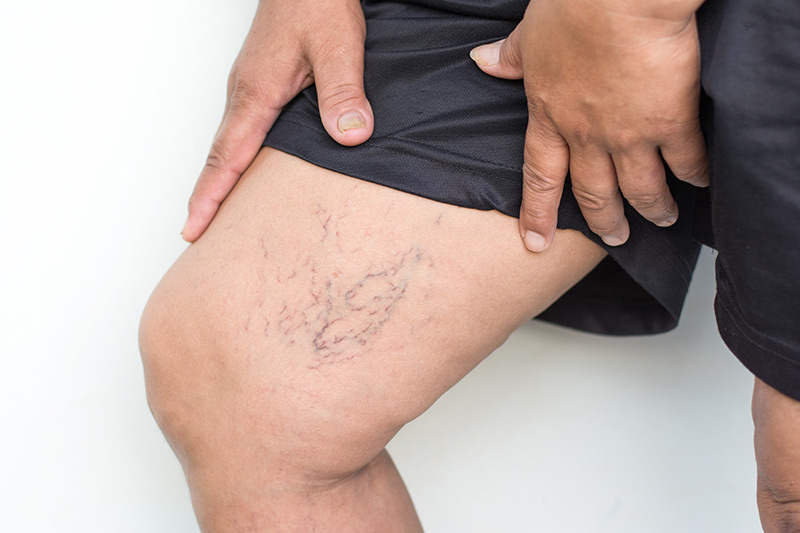 Dermatologie Quist - Venenleiden