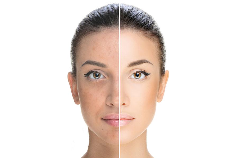 Dermatologie Quist - Akne und Rosazea