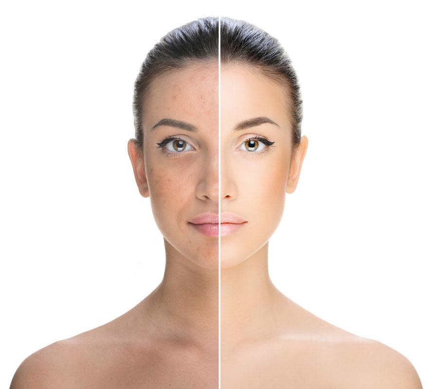 Dieses Bild zeigt eine Patientin vor und nach der Behandlung von Akne.
