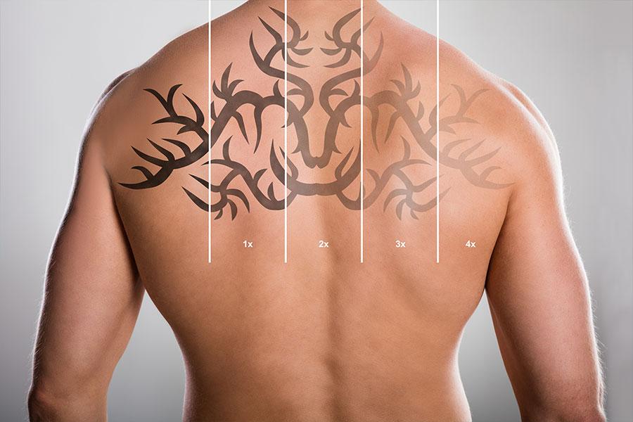 Dermatologie Quist - Tattooentfernung
